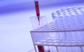 Французские стартапы в борьбе против рака