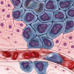 Ученые создали идеальный вирус для борьбы с раком